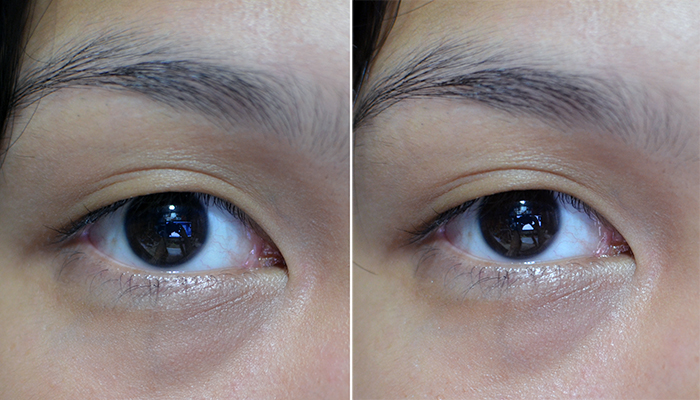 BRTC Bright Eye Vitalizer Cream - Before and After