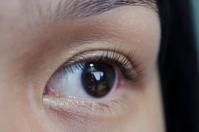 Eye - 34