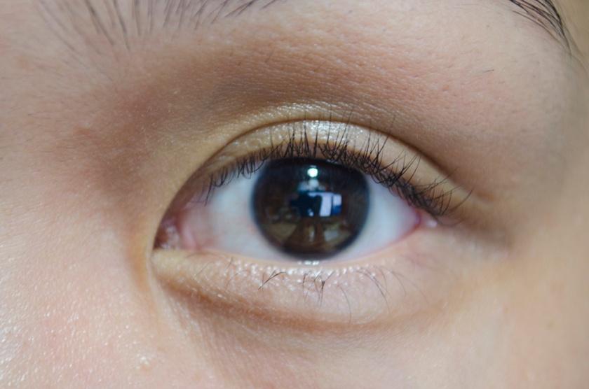 Eye - Front