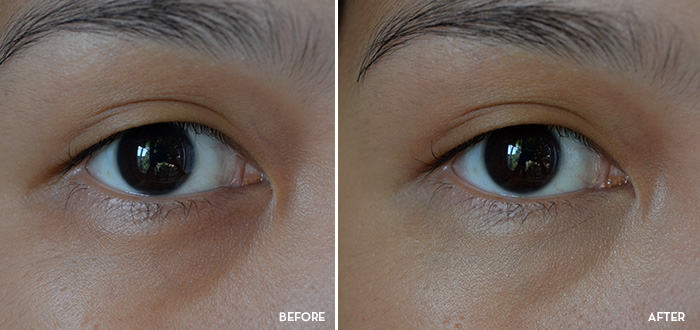 Happy Skin - Eye Need a Miracle - Before and After